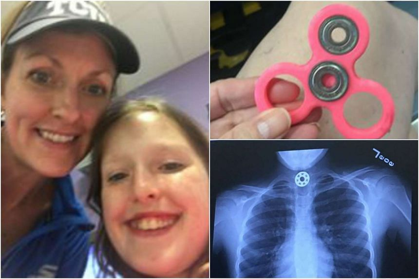 Britton Joniac attempted to clean her fidget spinner by putting the toy in her mouth. She accidentally swallowed it and had trouble breathing.