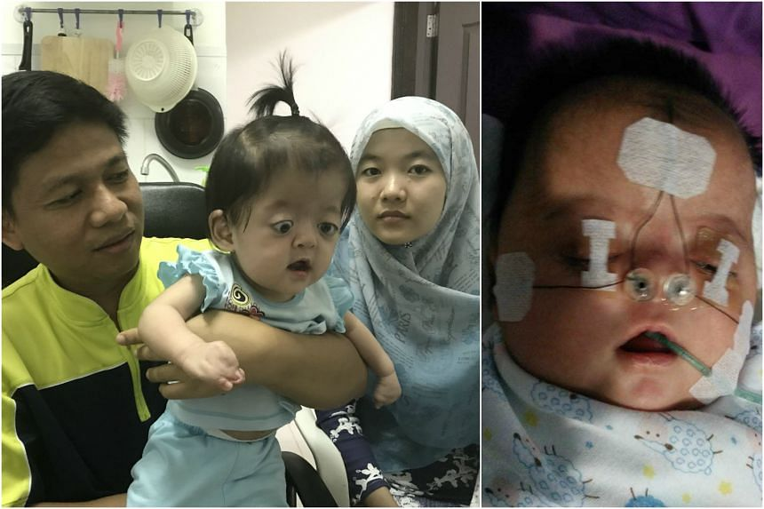 10-month-old Rizky Ramadhani was born with the rare Apert Syndrom.