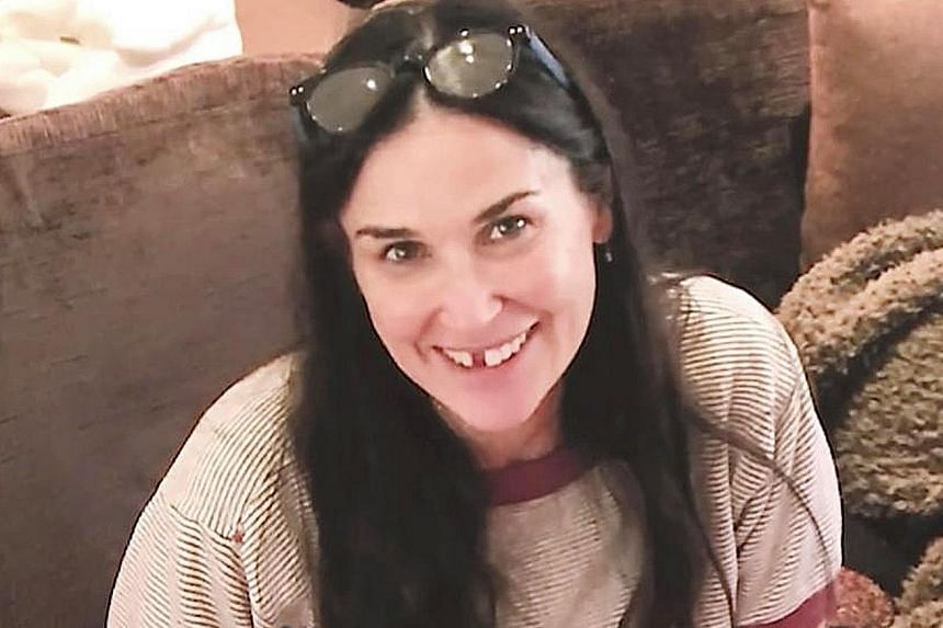 Demi Moore with her missing teeth.