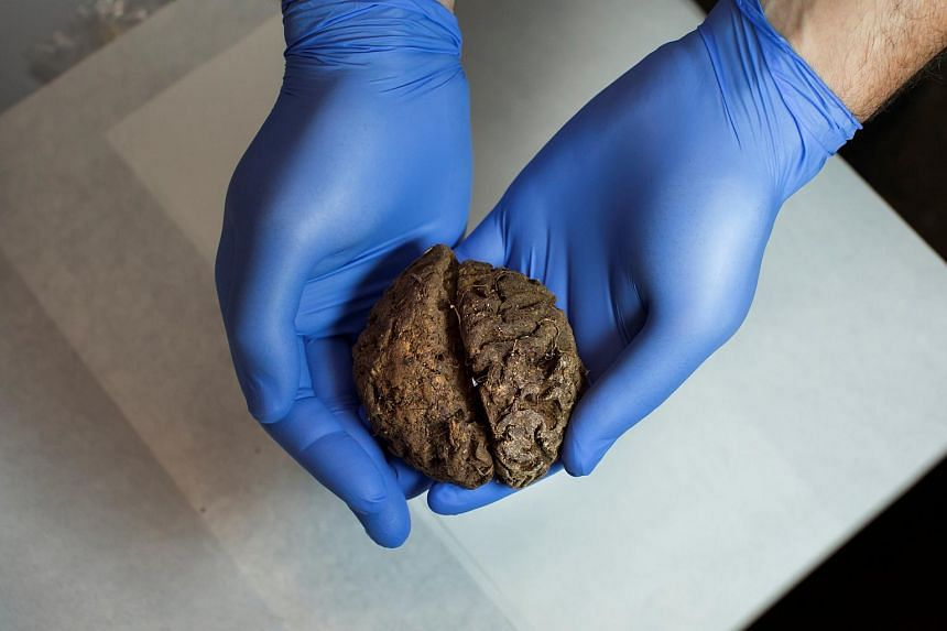 Fernando Serrulla, a forensic anthropologist of the Aranzadi Science Society, shows one of the 45 brains at a laboratory in Verin, Spain, on June 9, 2017.