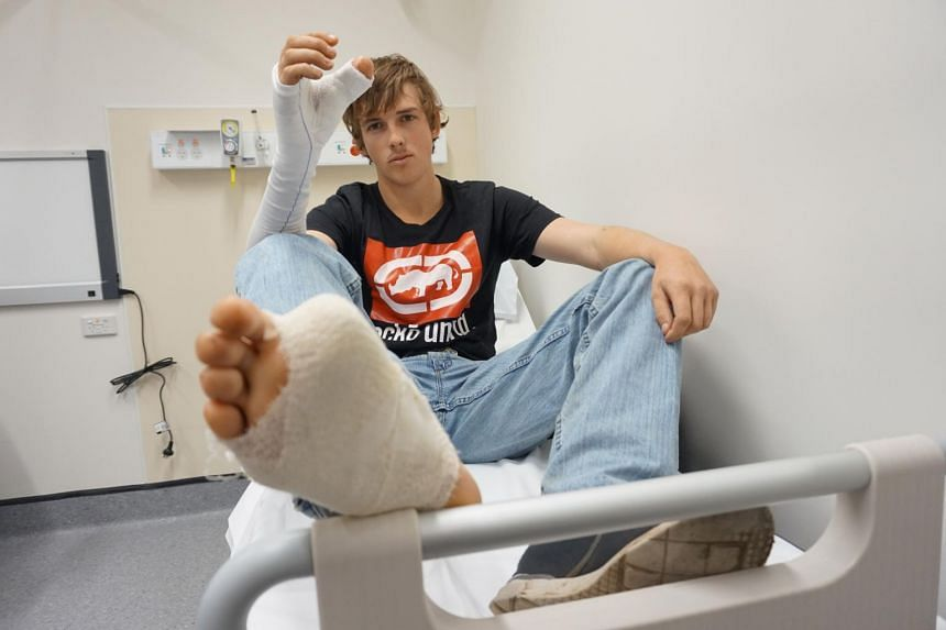 An Australian man whose thumb was severed in a cattle herding accident has had a big toe surgically removed and transplanted onto his hand to replace the lost digit, medical staff said on July 14 2017.