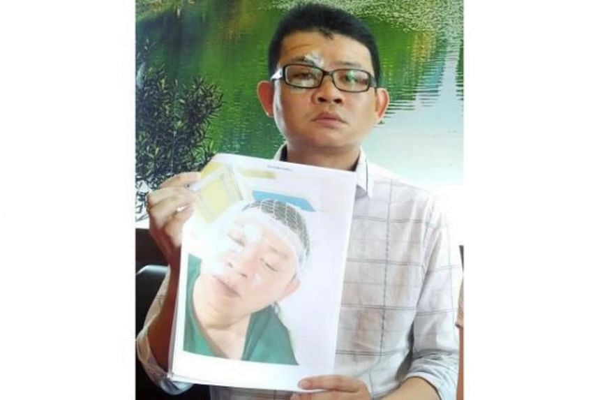 Thoo Kang Wei, 33, who has over 60 stitches on his head and face, also claimed that he was in coma for a day in the hospital.