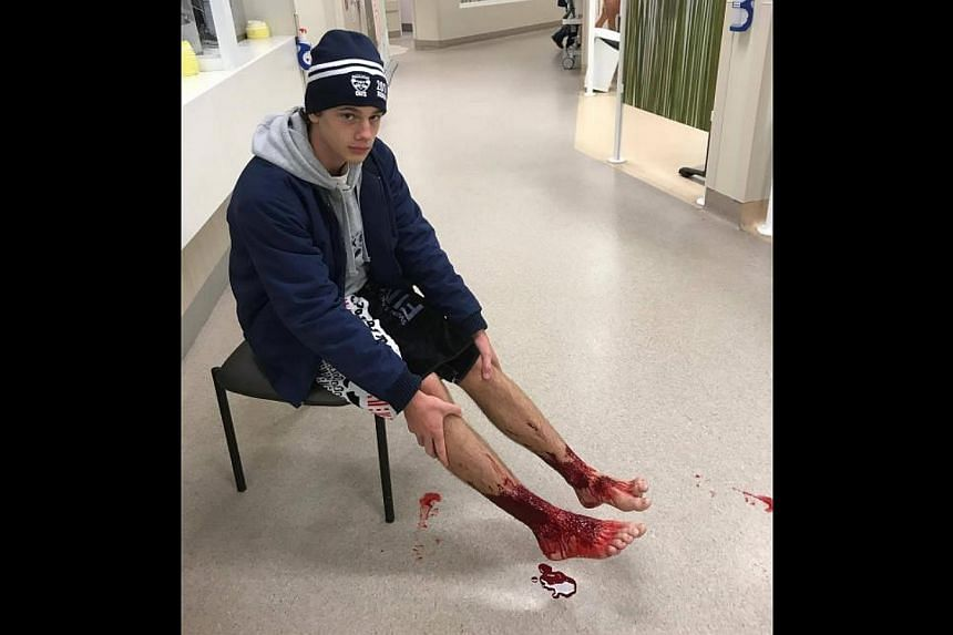 Sam Kanizay with his injured feet waits for medical aide at hospital in Melbourne.
