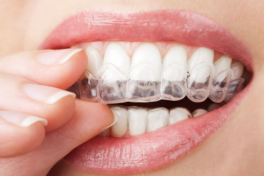 Take home teeth whitening kits are available at all of Raffles Dental's clinics.