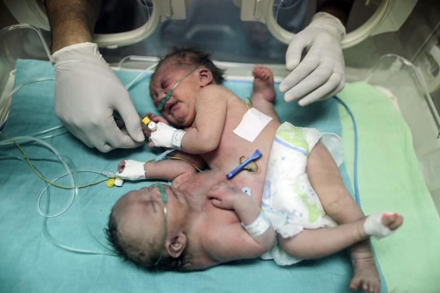 One-day-old Palestinian conjoined twins lie in an incubator at the nursery at al-Shifa Hospital in Gaza City on Oct 22, 2017.
