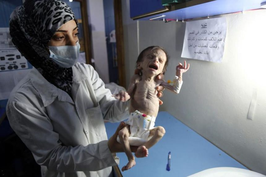 A Syrian infant suffering from severe malnutrition is carried by a nurse at a clinic in the rebel-controlled town of Hamouria, in the eastern Ghouta region on the outskirts of the capital Damascus, on Oct 21, 2017.