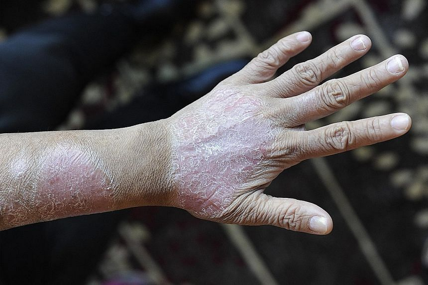 Psoriasis usually shows up as thick, red patches that can be itchy, scaly and can peel.
