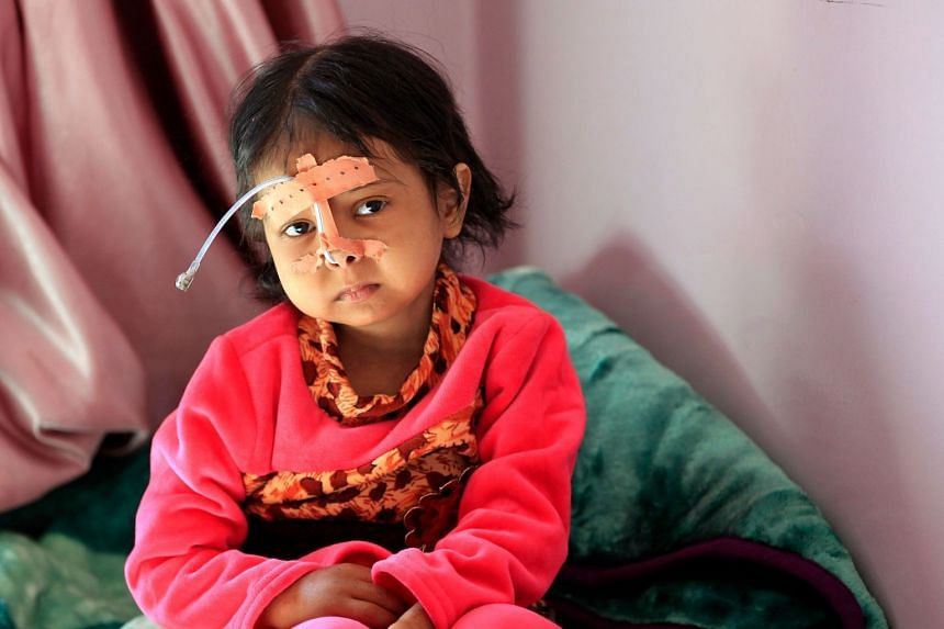 A Yemeni child being treated at a hospital in the capital Sana'a this week. The UN has warned that war-wracked Yemen faces mass famine unless aid deliveries are allowed to enter the impoverished country.