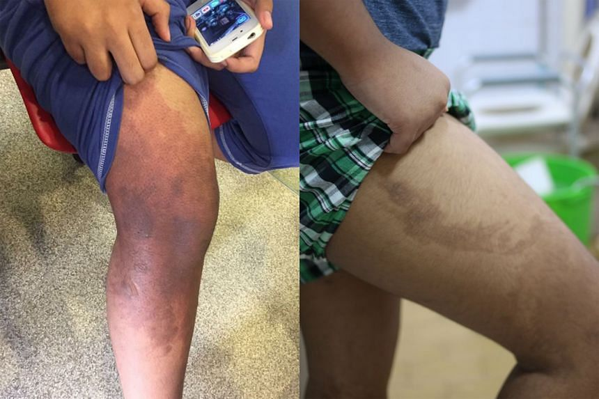 Left: The boy's leg, one day after his maid poured hot oil on him on Feb 15. He was treated for burns on his lower limb and right forearm, and has since recovered. Right: He has been left with scars, even to this day. He said he and the maid argued