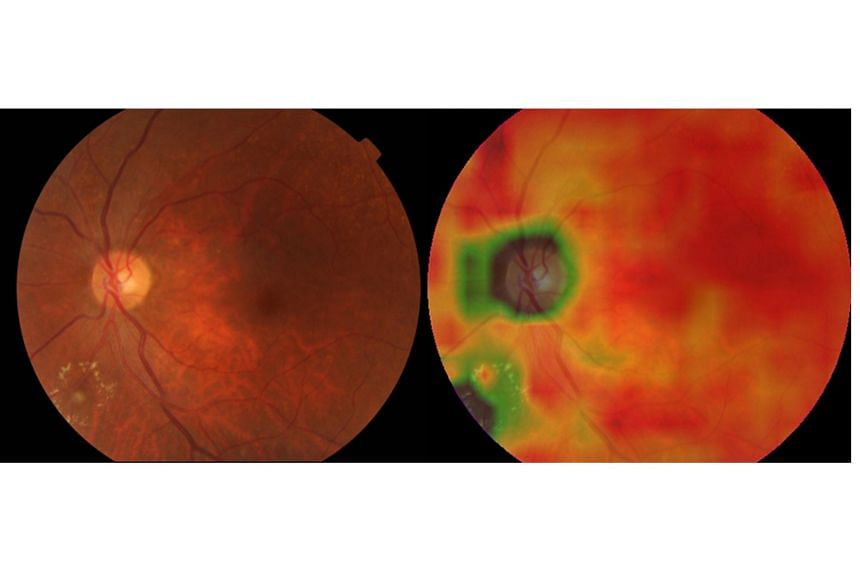 Left image: A retinal image with referable diabetic retinopathy (DR). Right image: The heat map generated by an artificial intelligence screening system, highlighting areas of DR lesions present in the image.