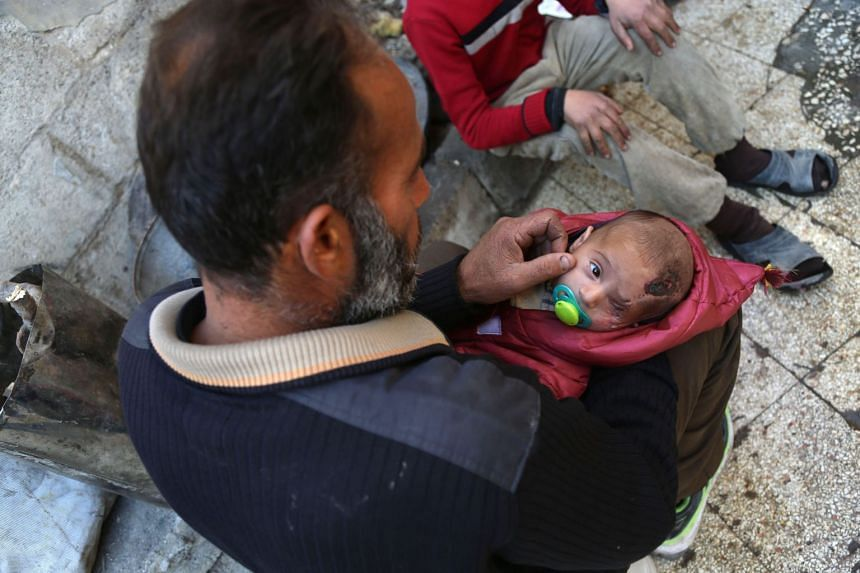 Karim, held here by his father, lost his left eye and his his mother in government shelling.