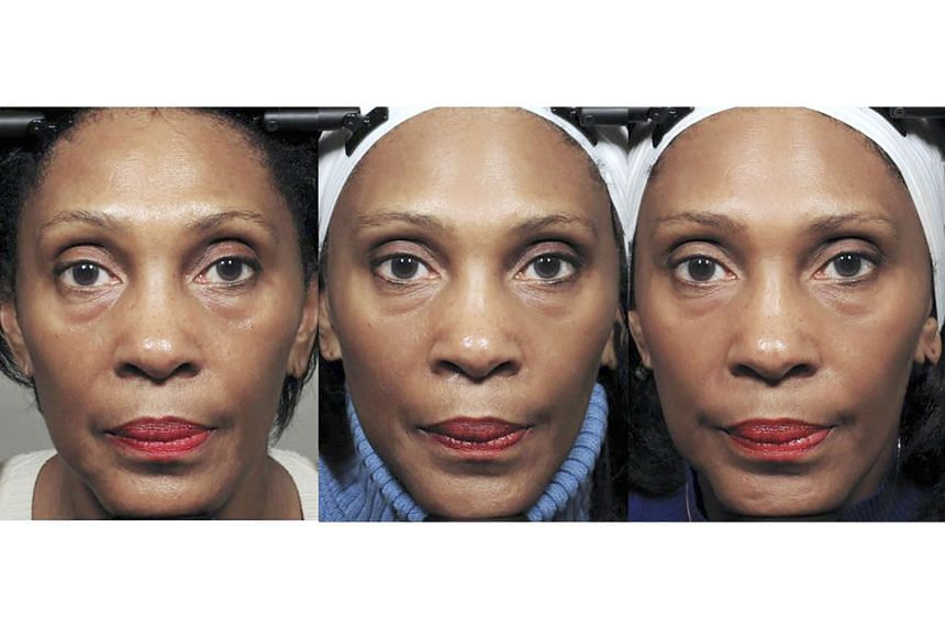 The effects of the exercises on one of the Northwestern University Feinberg School of Medicine test subjects were judged to be modest improvements to the upper cheeks and eye bags, starting at week eight (centre) and, by week 20 (right). But many of