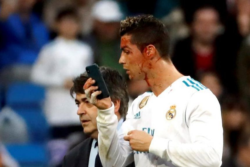 Real Madrid's Portuguese striker Cristiano Ronaldo uses a mobile phone to check a wound on his face during a La Liga match against Deportivo at Santiago Bernabeu stadium in Madrid on Jan 21, 2018.