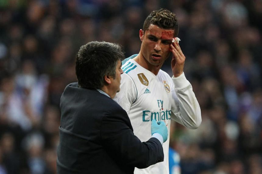 Real Madrid's Cristiano Ronaldo receives treatment after sustaining an injury whilst scoring their sixth goal at Santiago Bernabeu, Madrid, Spain on Jan 21, 2018.