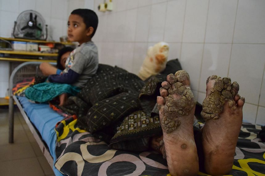 "Bajandar suffers from epidermodysplasia verruciformis, an extremely rare genetic condition known as ""tree-man disease""."