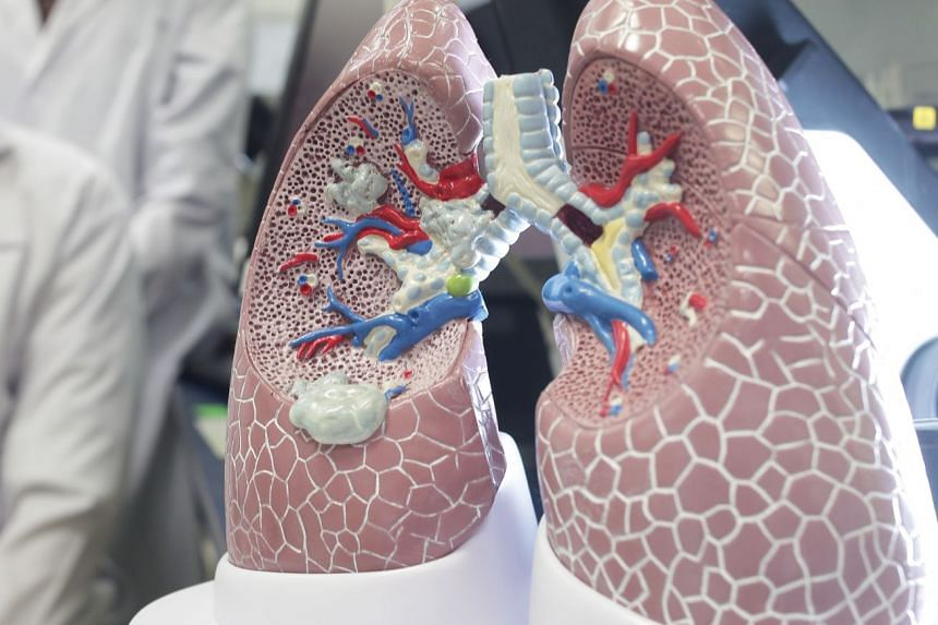 A study revealed that cancer cells in lung tumours of Asian patients appeared to have more varied genetic mutations than lung tumours of Caucasian patients.