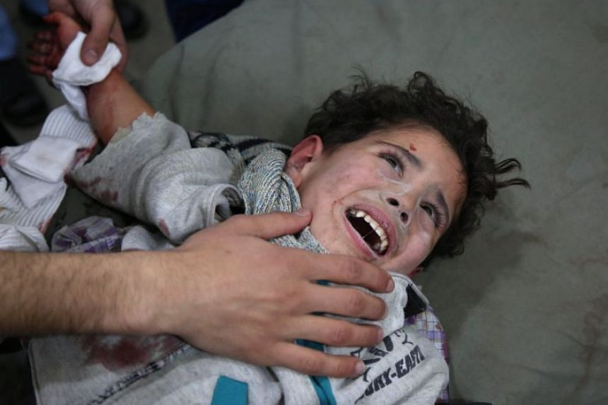 Wounded Syrian child Mohammed Malas, two, lies at a makeshift clinic following Syrian government bombardments.