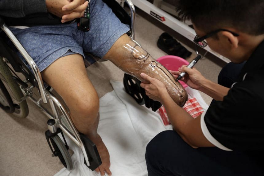 A prosthetist marks out a patient's stump anatomy to facilitate prosthesis fabrication. Singapore has one of the highest diabetes-related lower extremity amputations rates in the world