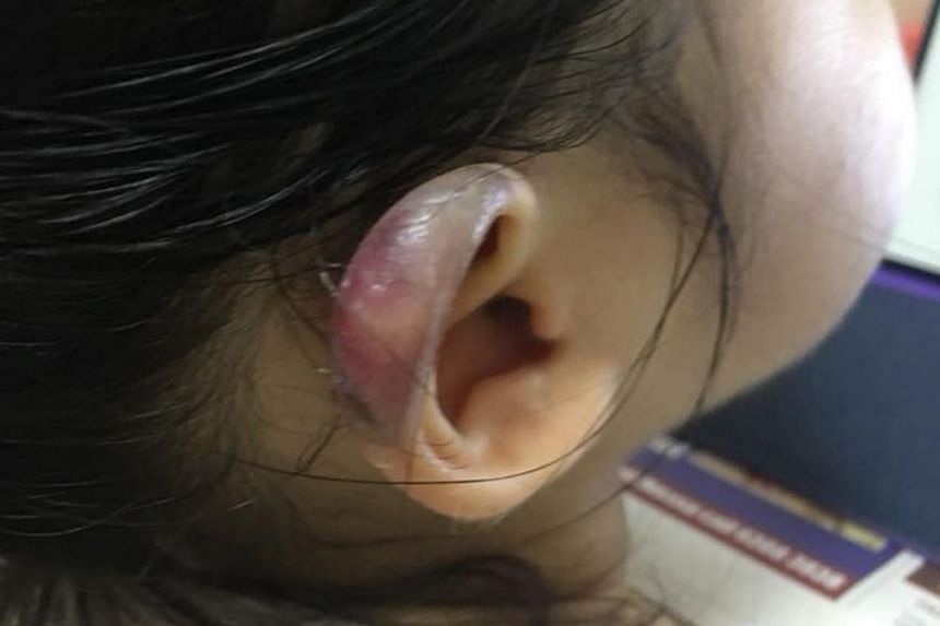 Photos posted on Facebook show the girl's ear had turned a deep purple colour, with some peeling skin.