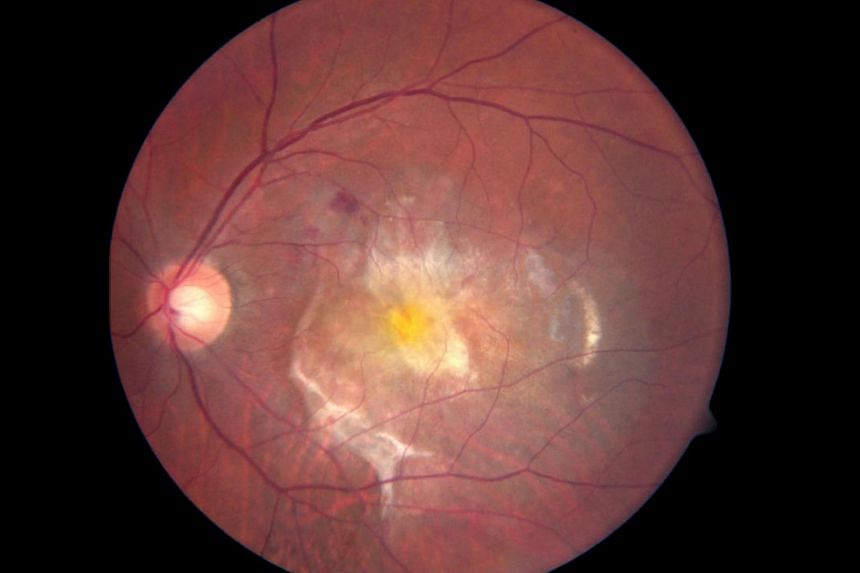 The scarring of the macular due to the wet age-related macular degeneration.