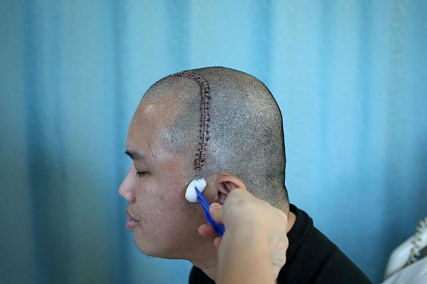 Auditor Oh Zhi Long at a follow-up consultation at the National Neuroscience Institute to have his staples removed on April 5 last year, after his brain surgery the previous month.