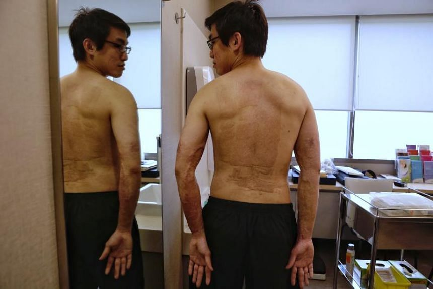 Mr Lim Ming Tat, 29, shows the skin graft on his back and arms on March 23, 2018.