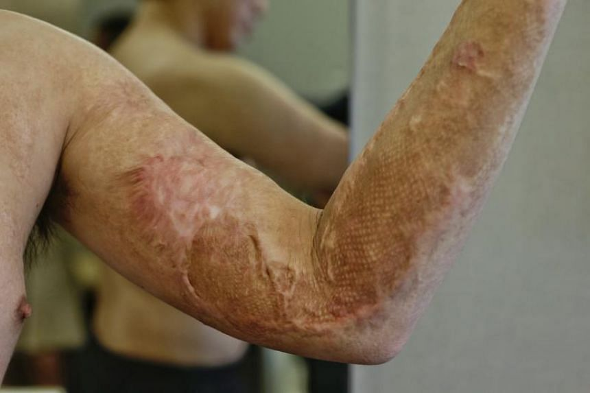Mr Lim Ming Tat, 29, shows the micro-grafting on his arm on March 23, 2018.