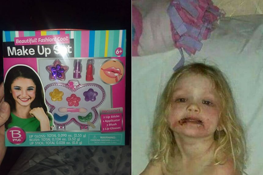 After a day of playing with the set and applying the make-up to her face, the three-year-old began having rashes in her body and blisters on her face.