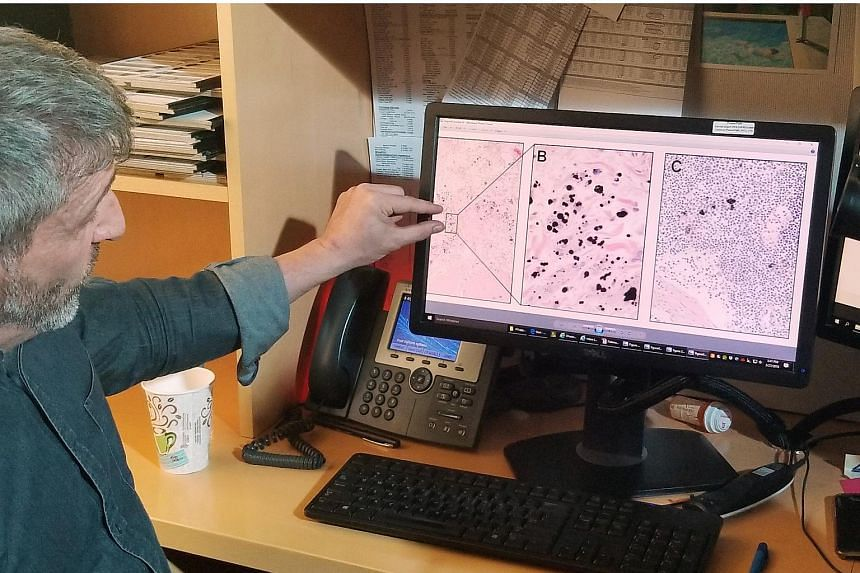 Pathologist Neil Theise looks at medical slides in New York City, on March 27, 2018.