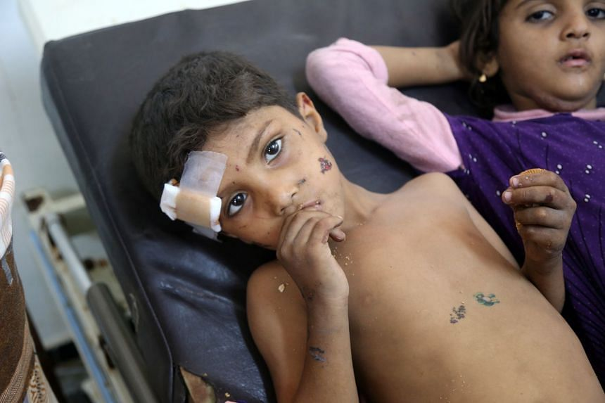 Yemeni children who were injured in air strike in the district of Al-Hali, in Hodeida province, receive treatment at a hospital on April 2, 2018.