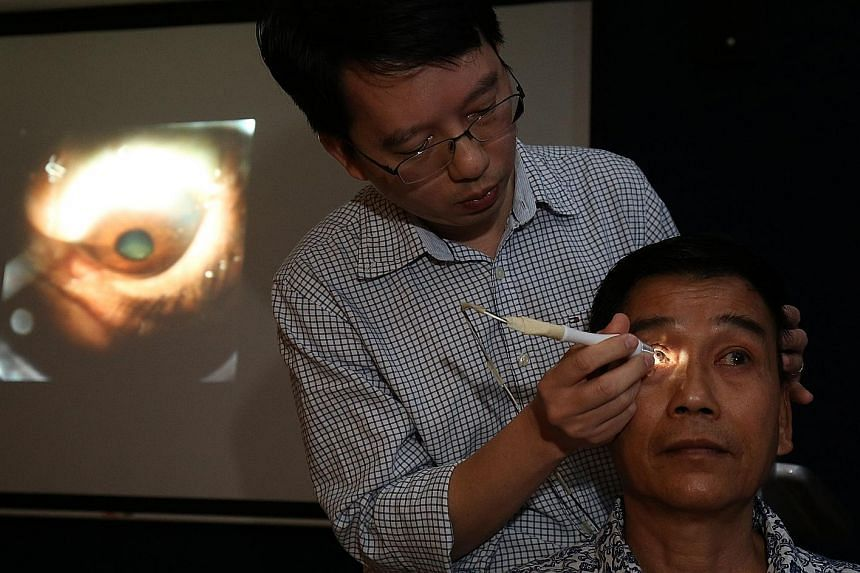 Seri research assistant Tin Aung Tun uses the GonioPEN to diagnose the type of glaucoma in Mr Loke Yew Chong. The GonioPEN (right) compared with a traditional glass gonioscope, which is pressed against a patient's eyeball and is linked to a microscop
