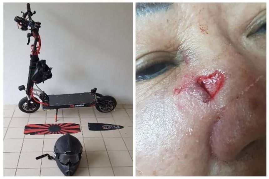 A 65-year-old woman reported that she was knocked down by an e-scooter at Ang Mo Kio Avenue 5, on April 17, 2018.