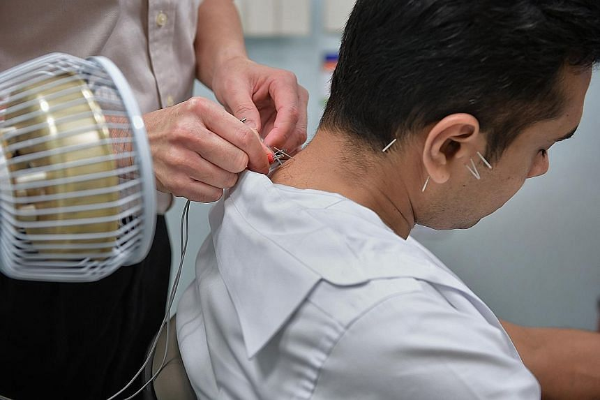 Top: Ailments treated in hospital using acupuncture are often musculoskeletal in nature, such as neck, back and shoulder pains, said Dr Richard Tan. Above: Acupuncture being used to treat a jaw disorder.