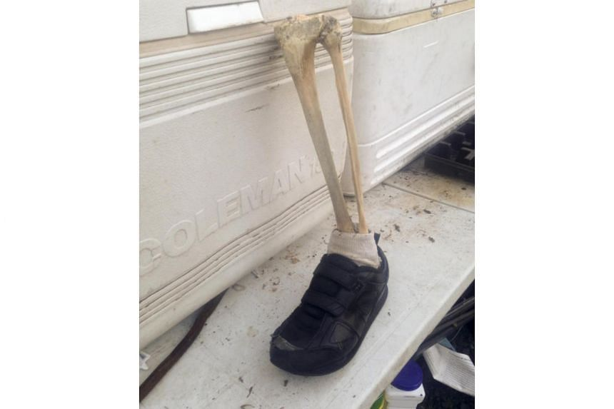 A tibia, fibula, left foot and sneaker that was found by Doug Johns on a beach on Vancouver Island.