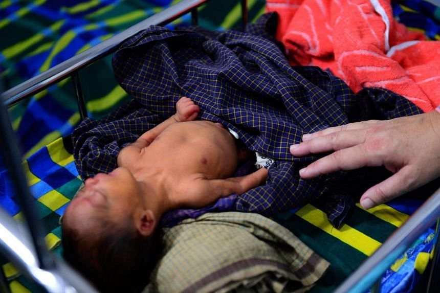 A sick child being treated at a Doctors Without Borders clinic, at Kutupalong refugee camp in Bangladesh's Ukhia district on April 9, 2018.