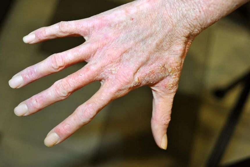 Atopic eczema on a patient's hand. The results from a study make it likely that dupilumab will be approved for use against severe asthma.