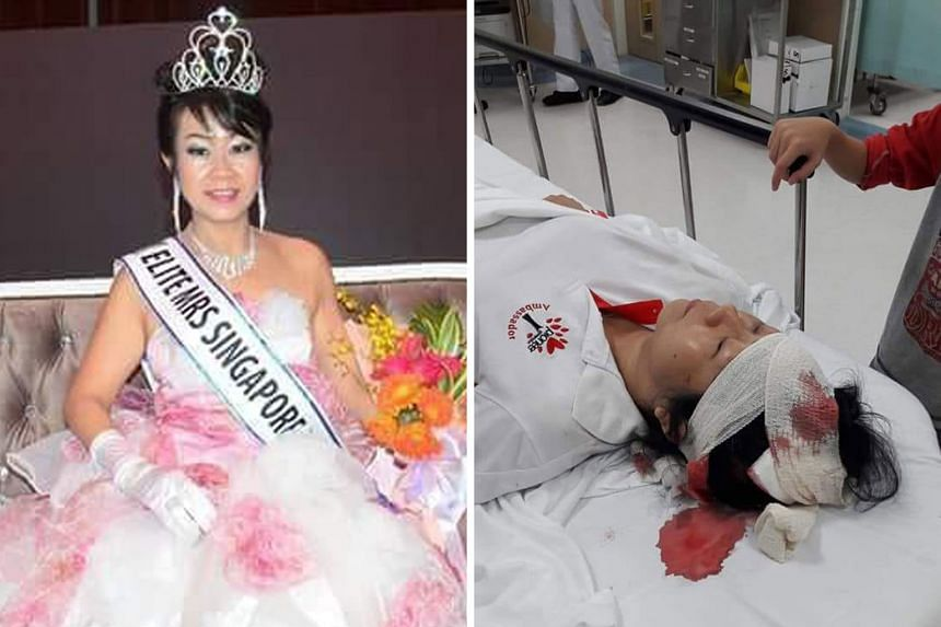 Madam Cassandra Ho, who was crowned Elite Mrs Singapore Asean in 2016 (far left), was taken to Tan Tock Seng Hospital after she was hit by an e-scooter. She hurt her head and face (left) in the accident.