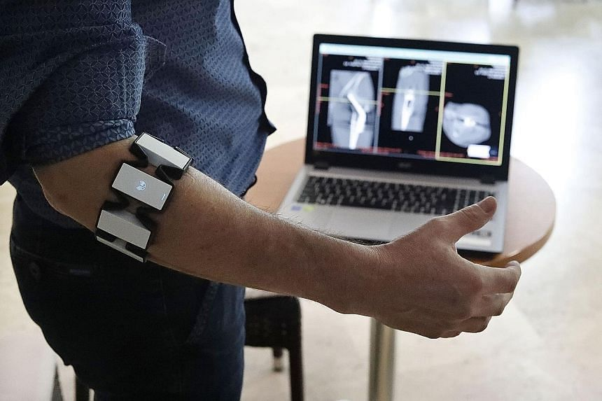 The Adora Assistant enables a surgeon to look at a patient's X-rays while operating, cutting surgery time by up to 20 per cent. It also allows the surgeon to remain inside the operating room's sterile environment.