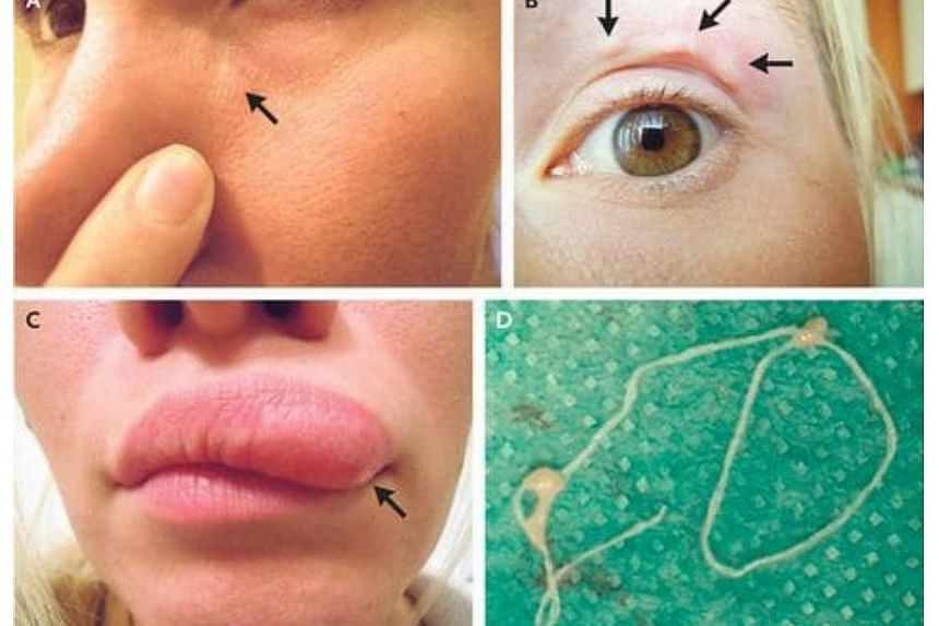 A parasitic worm, known as Dirofilaria repens, was living in a 32-year-old woman's face in Russia.