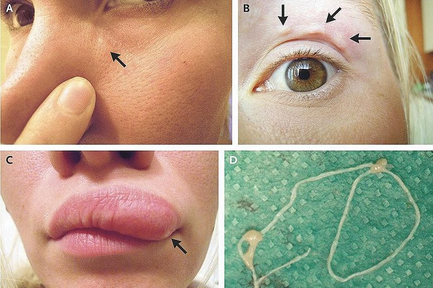 The woman from Russia reportedly fell victim to a roundworm (above) via a mosquito bite.