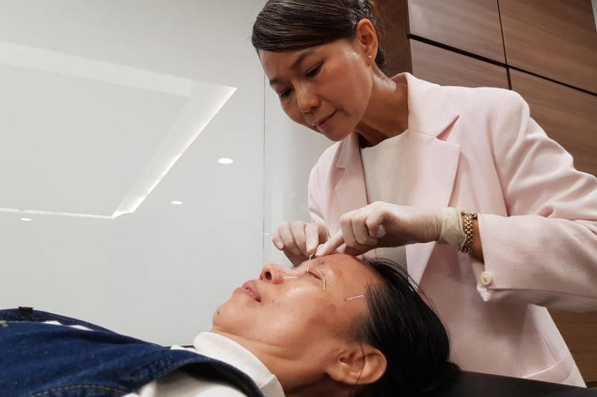 """Optician Mdm Tan Hwa Moi participating in acupuncture treatment during a clinical trial for treating """"dry eye""""."""