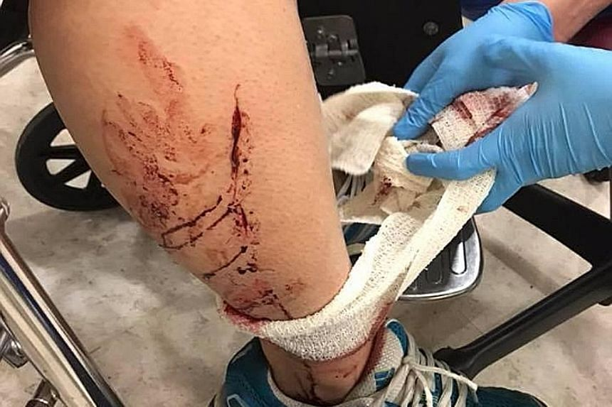 Ms Jenn Low's sister suffered cuts on her right temple, arm and leg after she was knocked down by an e-scooter rider in Bukit Panjang on Tuesday. Ms Low said the rider did not stop or provide help, but fled the scene instead.