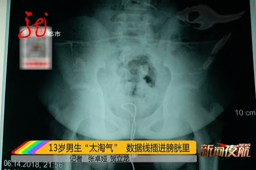 According to a report on Heilongjiang Metropolis Channel, the 13-year-old boy had cut off a USB head before inserting the cable into himself out of curiosity.