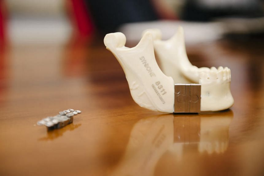 A prototype of the new modular endoprosthesis for jaw reconstruction.
