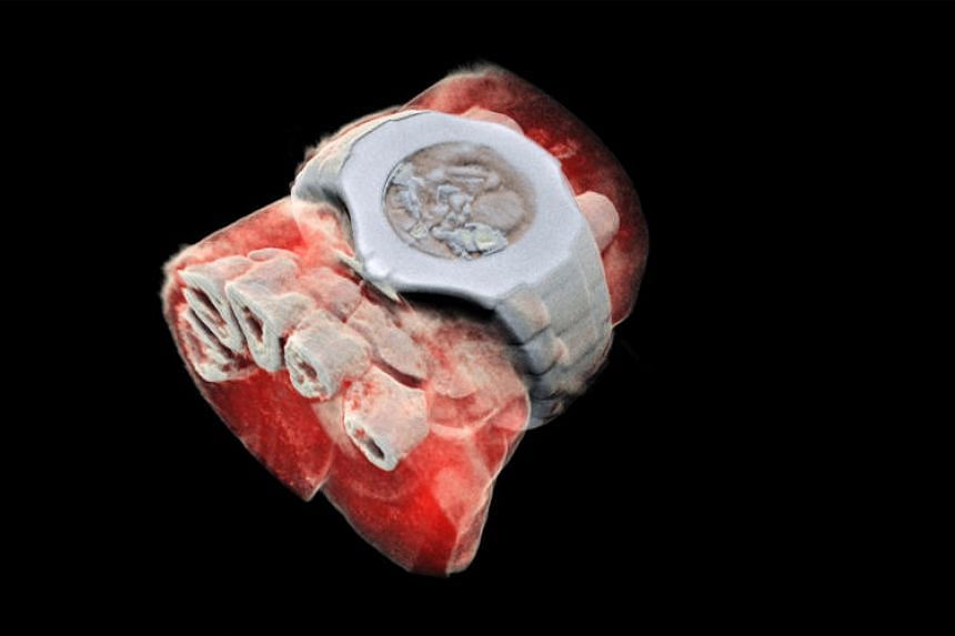 A 3D image of a wrist with a watch showing part of the finger bones in white and soft tissue in red.