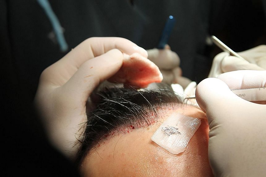 Freia Medical (above) and The Clifford Clinic (top right) use follicular unit extraction, a minimally invasive method for hair transplants, which might benefit men with male-pattern baldness (above right - the result of a hair transplant performed by