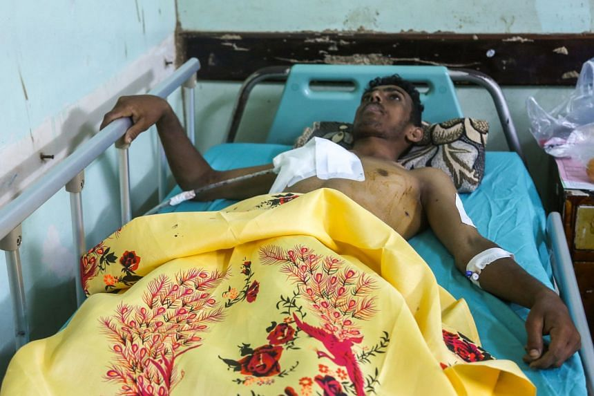 An injured Yemeni fisherman lies in a hospital bed as he receives treatment after being wounded in the reported air strike.
