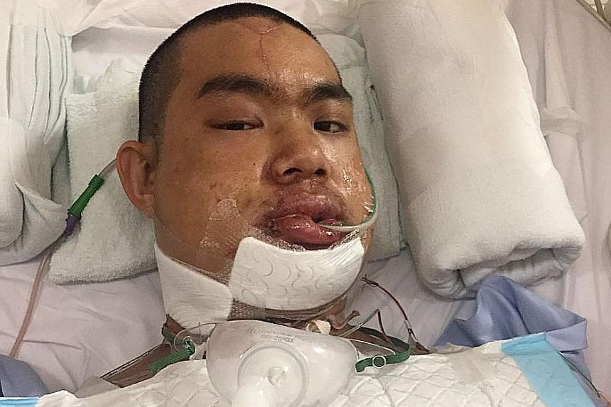 BROKEN BONES: Cyclist Teh Jing Long suffered multiple injuries and was in a hospital for over two months after a crash last year. He has now returned to competitive cycling.