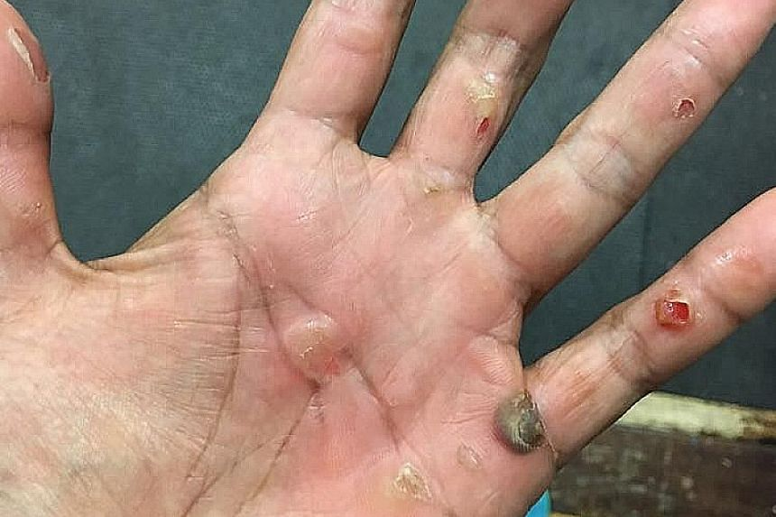 BLOOD BLISTERS: Blood blisters form now and then on rower Saiyidah Aisyah's palms. She tapes them but sometimes they burst and result in red smudges on her oars.