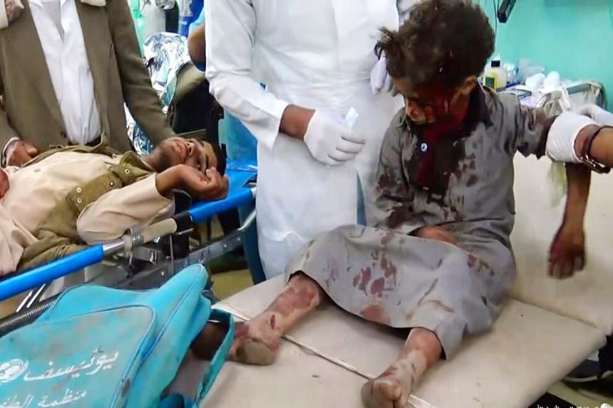 A wounded child receiving treatment after being injured in an alleged Saudi-led airstrike in the northern province of Saada.